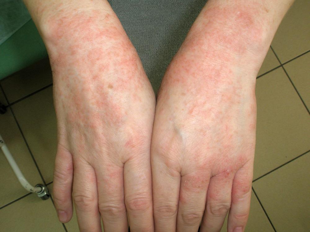 Экзема псориаз кожные заболевания